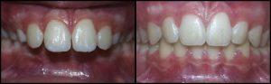 orthodontist-1