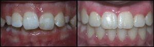 orthodontist-11