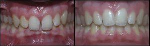 orthodontist-3