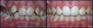 orthodontist-7