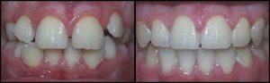 orthodontist-8